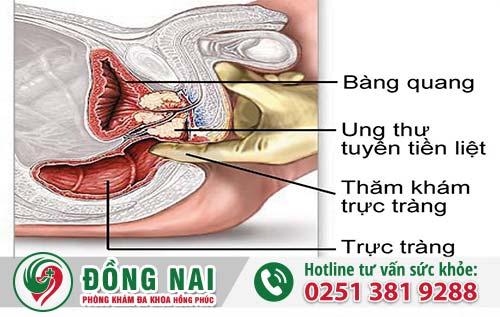 Tiểu buốt tiểu rắt nguy cơ gây ungth ư tuyến tiền liệt