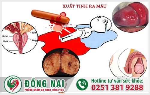 Xuất tinh ra máu cần được thăm khám và điều trị kịp thời