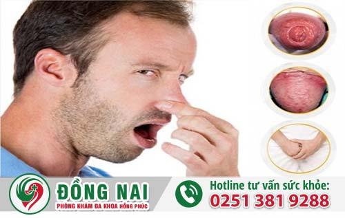 Những bệnh khiến dương vật có mùi hôi