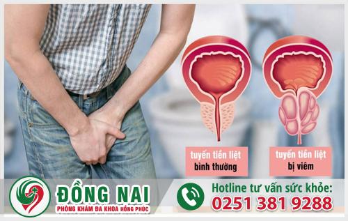 Viêm tuyến tiền liệt - đe dọa đến sức khỏe và khả năng sinh sản của nam giới