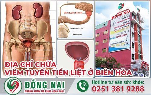 Địa chỉ chữa viêm tuyến tiền liệt ở Biên Hòa có bác sĩ giỏi