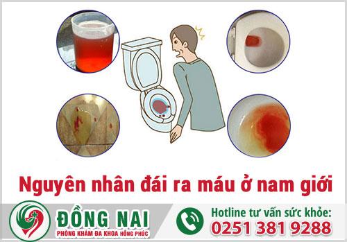 Nguyên nhân đái ra máu ở nam giới là gì?