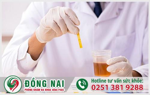 Xét nghiệm nước tiểu chẩn đoán viêm tuyến tiền liệt